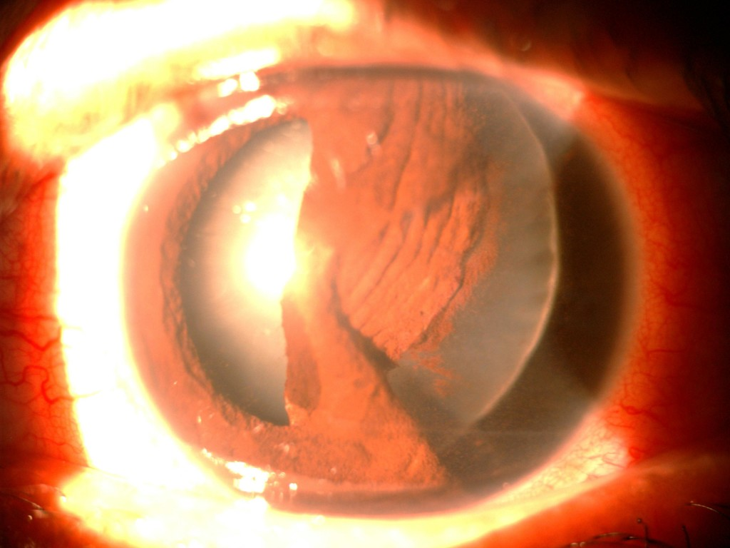 Another unfortunate industrial injury left this patient with severe iris trauma, with defects in multiple areas of his iris. His lens also started turning cloudy, and started to wobble every time his eye moved.