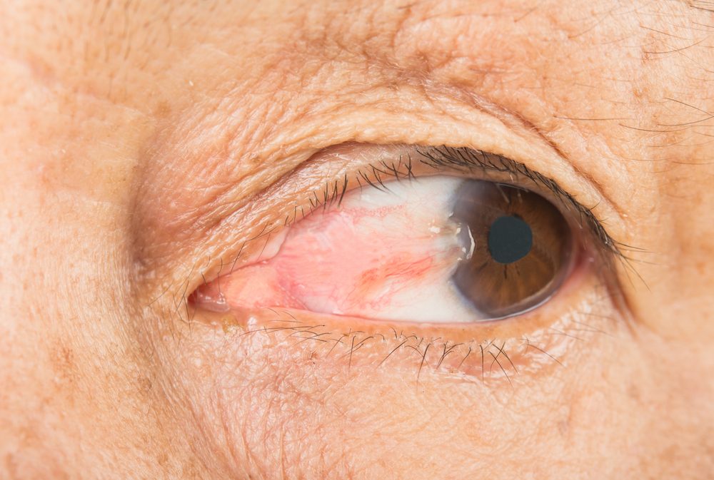 pterygium-growth