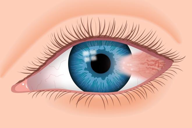pterygium-on-left-eye