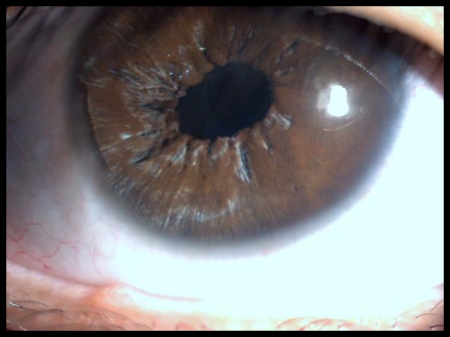 This picture was taken soon after the same patient had an hour-long surgery to repair the iris, and remove the cataract. The iris is repaired, and the pupil (which is the opening formed by the iris for light to enter the eye) is smaller. The patient now experiences less glare, and the images are much sharper.