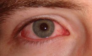 conjunctivitis-zika