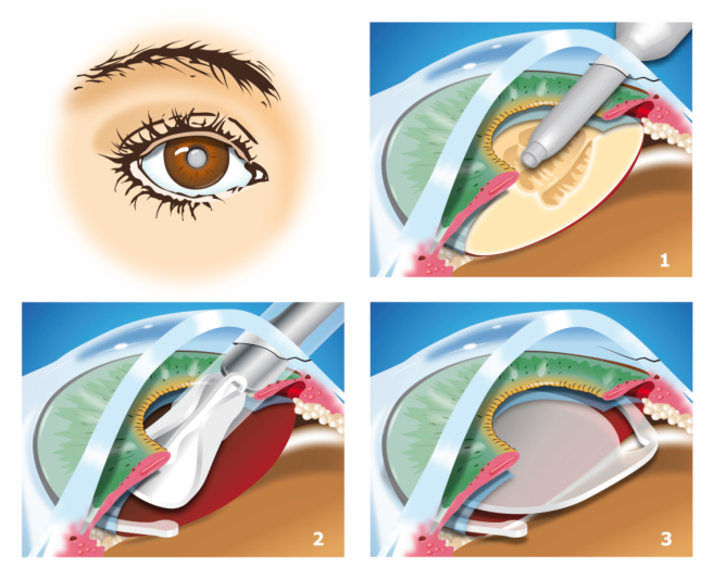 Traditional Cataract Surgery
