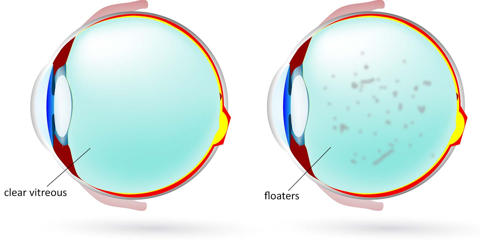 Normal Vs Floaters Photo