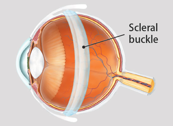 Scleral Buckle